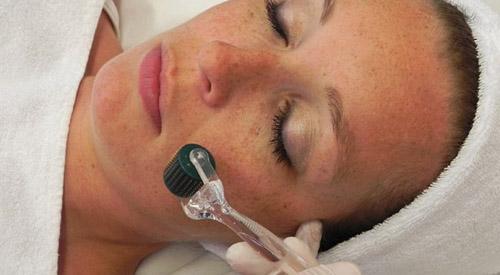 concombre contre les cicatrices d'acné wikipedia