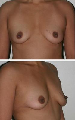 Inflated Breasts After Pregnancy