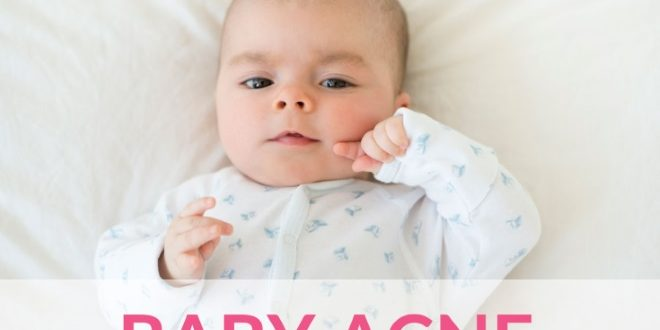 baby acne causes