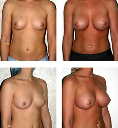 Breast Augmentation with silicon