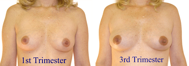 areola changes during pregnancy