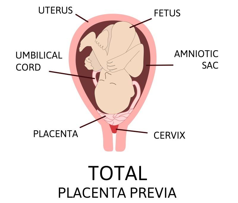placenta previa pregnancy bleeding
