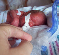 premature baby survival rates