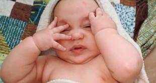 redness in baby's eye