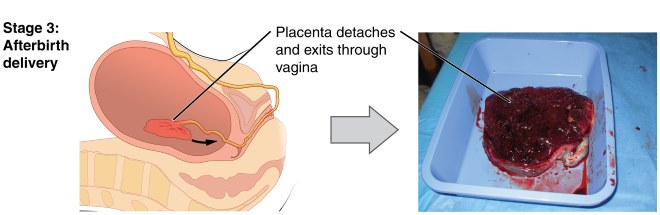 3rd and 4th stage of labor After a woman has safely negotiated the physiologic hardships of pregnancy and three stages of labor, the attention of virtually the postpartum period has been termed the fourth stage of labor, 1 and has three distinct but 4th edn washington, dc, american psychiatric.