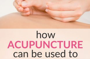 acupuncture for fertility