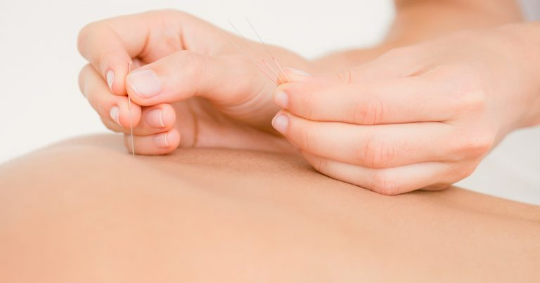 Acupuncture for Fertility in Women & Men? Maybe, Research Says!