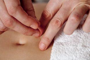 acupunture for fertility