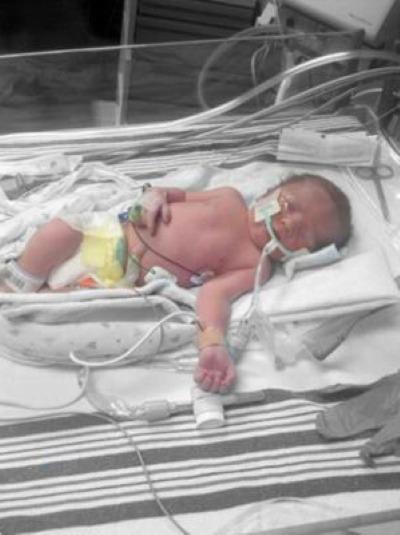 premature traumatic birth story