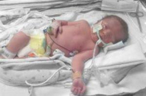 My 6 weeks premature, traumatic birth story